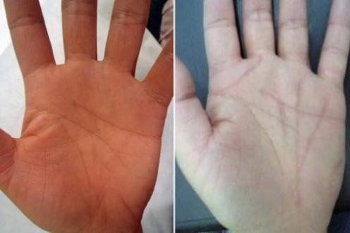 Plástica nas linhas das mãos faz sucesso no Japão