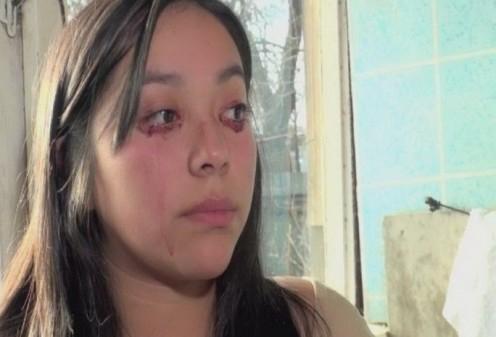 Bizarro: Chilena que chora sangue - Fotos-1