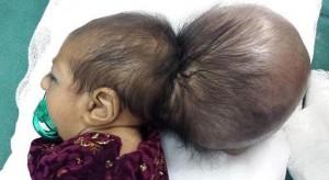 Menina afegã sobrevive após tirar '2ª cabeça'
