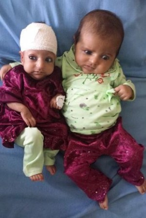 Menina afegã sobrevive após tirar '2ª cabeça' - Fotos