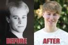 Bizarro: Garoto investe R$ 200 mil para mudar rosto - Fotos