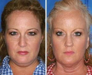 Neste primeiro caso, a irmã da esquerda nunca fumou, enquanto a da direita é fumante. A diferença é notada principalmente embaixo dos olhos e ao redor da boca