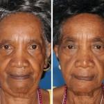 Enquanto a irmã da esquerda nunca fumou, a da direita é fumante há 29 anos. As diferenças na pele são notáveis, novamente com destaque para a região dos olhos e da boca